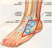 smerter i rista pa foten